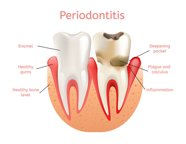 Diagram of a healthy tooth versus a tooth with periodontitis